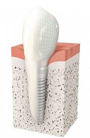 Implant dentaire Pau